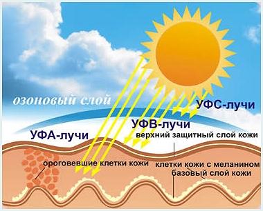 Влияние ультрафиолетового излучения на здоровье